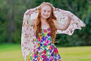 Maddy, la ragazza Down che diventa modella e rivoluziona il mondo della moda (FOTO)