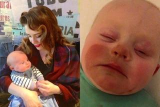 Dopo una seduta di abbronzatura spray allatta il figlio e il suo viso diventa arancione