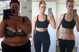 """Perde 86 kg in un anno ma il web non le crede: """"Non è possibile che non abbia smagliature"""""""