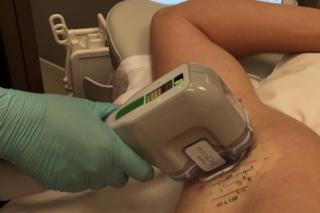 Addio peli e sudore: ecco il nuovo trattamento che sfrutta l'energia del microonde
