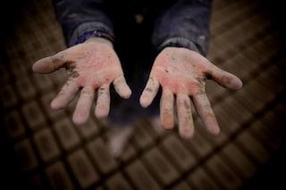 Harry, il bimbo di 4 anni allergico all'acqua: un bagnetto per lui può essere fatale