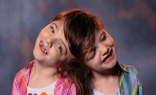 Sono gemelle siamesi ed hanno un solo cervello: condividono pensieri ed emozioni