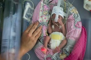 Nasce alla 23esima settimana di gravidanza ma sopravvive contro ogni aspettativa