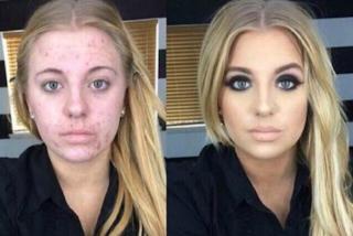 A causa dell'acne diventa vittima di cyberbullismo: reagisce in modo incredibile (VIDEO)