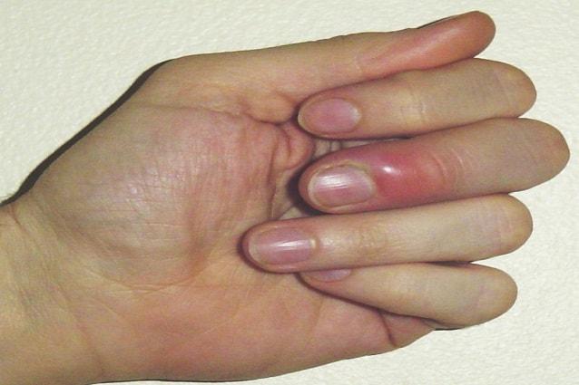 candida sotto le unghie