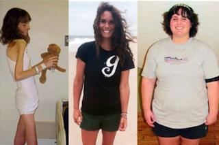 Prima anoressica, poi obesa: oggi Britanny ha trovato la serenità