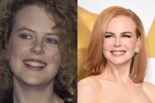 Le star prima e dopo la chirurgia: quando il ritocchino diventa horror (FOTO)