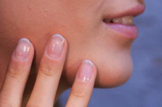 Come eliminare le cicatrici con i rimedi naturali