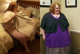 L'ossessione per il cibo la stava uccidendo, con il bypass gastrico perde 90 chili