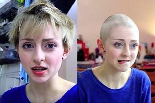Si rasa a zero per evitare di strapparsi i capelli, così combatte il disturbo compulsivo