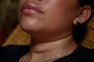 L'esercizio tibetano per stimolare la tiroide ed attivare la perdita di peso