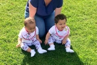 Jasmine e Amelia, le gemelline nate con il colore della pelle e degli occhi diverso