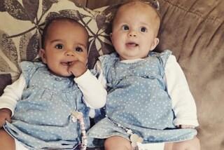 "Amaya e Myla, le gemelline ""diverse"": una è bianca, l'altra ha la pelle scura"