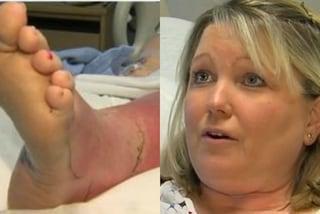 La pedicure le causa una grave infezione alla gamba: il tagliaunghie non era sterilizzato