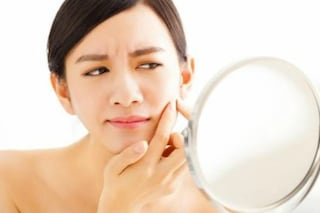 Aumentano i casi di acne in tenera età: la lotta contro i brufoli comincia sempre prima