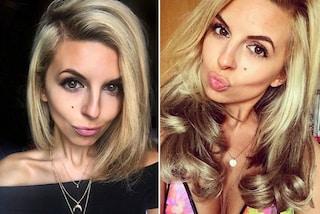 Era arrivata a pesare 28 chili: Hayley sconfigge l'anoressia su Instagram
