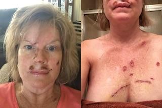 Mostra le foto delle cicatrici per far capire quali sono i rischi del cancro alla pelle