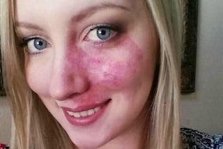 Per 10 anni copre la voglia sul viso con il make-up: oggi si mostra finalmente al naturale