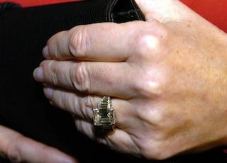 A 93 anni giace in un letto d'ospedale, i ladri le rubano l'anello di brillanti dal dito