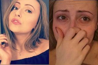 Scatta un selfie prima e dopo l'attacco di panico, così Amber mostra che cos'è l'ansia