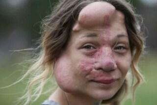 """Costretta a portare delle protesi che le sfigurano il volto: """"Potrei morire dissanguata"""""""