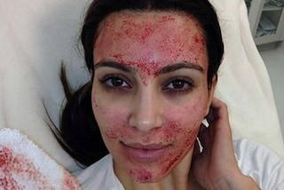 Ecco cosa succede se si prova il trattamento di bellezza con il sangue di Kim Kardashian