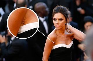 Armpit twist: il difetto più comune tra le star è la grinza ascellare (FOTO)