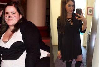 Perde 63 chili con la chirurgia, oggi va fiera delle smagliature e della pelle flaccida