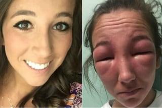 Non riesce ad aprire gli occhi a causa di un'allergia: la sua foto diventa virale