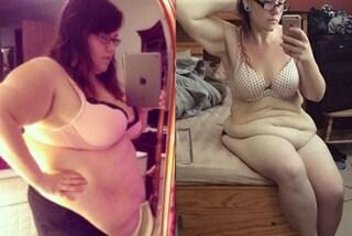 Era ossessionata dal cibo spazzatura: dimagrisce ma ora ha 19 kg di pelle in eccesso