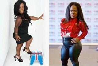 """Soffre di nanismo, diventa la modella più """"piccola"""" della Gran Bretagna: è alta 121 cm"""
