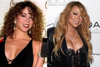 Le star prima e dopo la chirurgia: la trasformazione di Mariah Carey