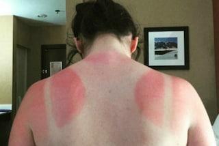 Rossi come aragoste: gli utenti postano le foto dei segni lasciati dal sole sulla pelle