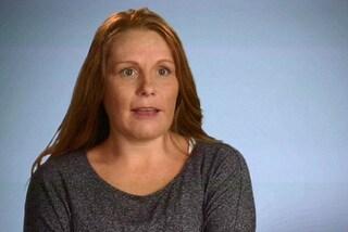 """""""I miei seni sembrano chele di granchio"""": rimuove le protesi infette dopo l'intervento"""