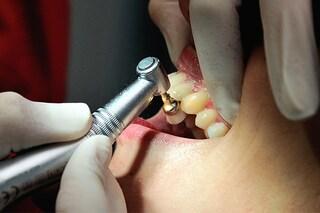 """Il dentista le lascia i """"denti da squalo"""", viene risarcita con più di 11.000 euro"""