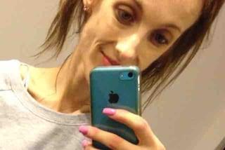 Rischia la morte a causa dell'anoressia: pesa 31 kg ed è bloccata in un ospedale