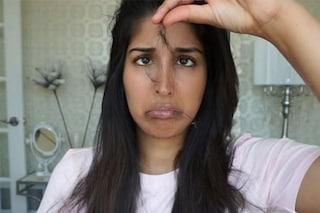 Caduta dei capelli: rimedi naturali più efficaci