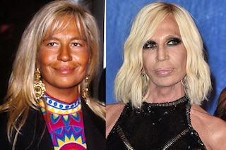 Le star prima e dopo la chirurgia: la trasformazione di Donatella Versace