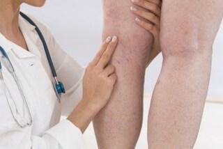 """""""La mia gamba era come una zampa d'elefante"""": la malattia rara le ha rovinato la vita"""