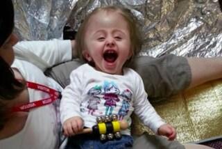 Rifiuta di abortire, la figlia nasce con la testa enorme a causa di una rara malattia