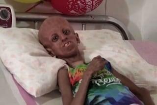 Ha solo 15 anni ma sembra una donna anziana, la malattia la fa invecchiare precocemente