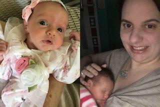 """Lynlee, la bimba """"nata due volte"""": rimossa dal grembo materno per sconfiggere il tumore"""