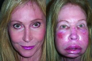 Il viso le si gonfia e non riesce più a respirare: Linda ha una rara malattia genetica