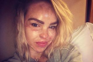 """""""Ad Halloween non disegnate cicatrici"""": Katie, sfigurata in volto, lancia l'appello"""