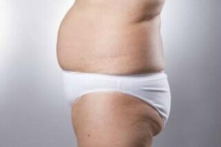 """""""Sembro una 90enne"""": perde 57 kg ma si ritrova con la pelle in eccesso su tutto il corpo"""