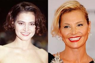 Simona Ventura, prima e dopo la chirurgia: ecco com'è cambiata dal 1990