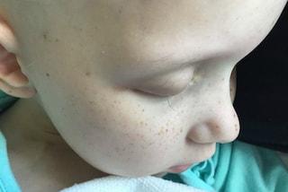 La chemio le lascia solo una ciglia: la straziante lotta contro il cancro della bimba