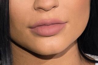 Usa il kit per avere la bocca di Kylie Jenner, si ritrova con le labbra ustionate