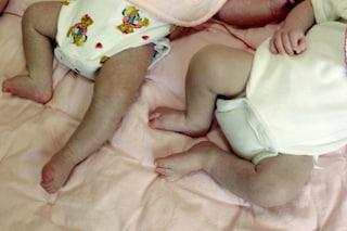 Rimane incinta quando aspetta già un bimbo: il disturbo raro l'ha fatta concepire 2 volte