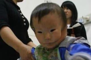 """Kangkang, il bimbo nato """"con la maschera"""": la malformazione gli ha deturpato il viso"""